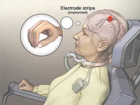 Implanted Brain–Computer Interface in a Locked-In Patient