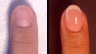 getlinkyoutube.com-Onicofagia - Ricostruzione unghie in gel