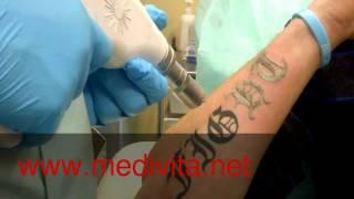 getlinkyoutube.com-Laserowe usuwanie tatuaży ( Q switch - tattoo removal )
