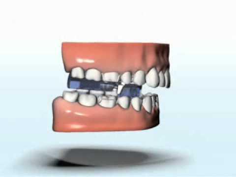 Tornillo propulsor mandibular - Película del producto - FORESTADENT