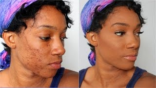 getlinkyoutube.com-How to Fully Cover Acne Spots and Scars - Flawless Acne Foundation Tutorial on Dark Skin Black Women
