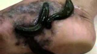 getlinkyoutube.com-Rakta Mokshana (Jalouka or Leeches)