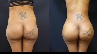 getlinkyoutube.com-Butt Augmentation with 712cc Implants and Fat Transfer to her Hips!