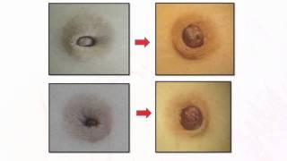getlinkyoutube.com-Dr. Kwon Blog   #1 Inverted Nipple : No incisional method