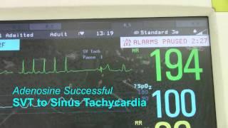 SVT or Supraventricular Tachycardia