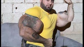 getlinkyoutube.com-synthol freak largest arms in the world   !!  - 3ajaib wa gharaib 2017 عجائب وغرائب