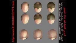 getlinkyoutube.com-طرق إنبات الشعر الطبيعي الحديثه