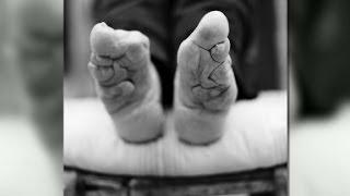 getlinkyoutube.com-Living with bound feet