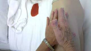 getlinkyoutube.com-Ventrogluteal site injection mrs miller demonstrates Bcc nursing i.m video