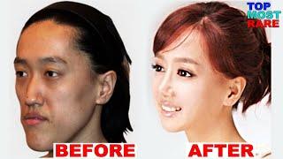 getlinkyoutube.com-50 Korean Plastic Surgery Before and After Photos