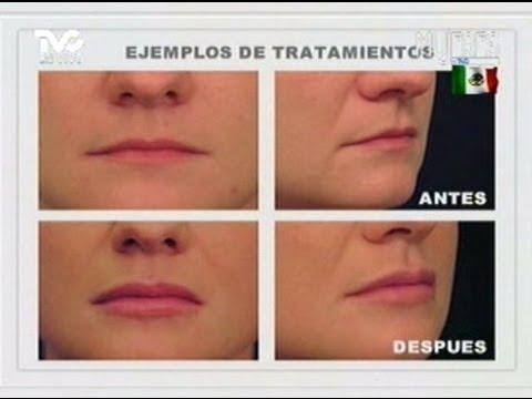 Aumento de Labios (METVC)