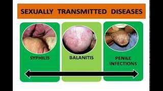 getlinkyoutube.com-Penis Infections ,STD's, STI,  Syphilis, Herpes, Gonorrhoea -  Best  Ayurvedic treatment in India