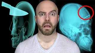 getlinkyoutube.com-10 CRAZIEST Things Found Inside Living People!