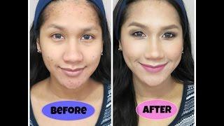 getlinkyoutube.com-Cara Makeup Menutupi Jerawat - Full Acne Coverage Foundation Routine ( Tutorial Bahasa Indonesia