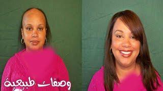 getlinkyoutube.com-وصفة رهيبة لعلاج تساقط الشعر في اسبوع | ماسك فعال لتقوية وتكثيف الشعر الخفيف