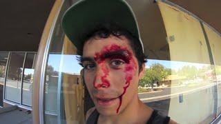 getlinkyoutube.com-10 Skateboarding Fails
