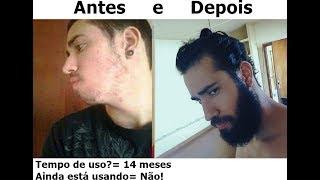 getlinkyoutube.com-MINOXIDIL ANTES E DEPOIS NA BARBA [PARTE 2]