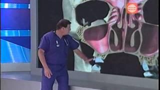 getlinkyoutube.com-Dr. TV Perú (18-04-2013) - B3 - Asistente del día: Sinusitis