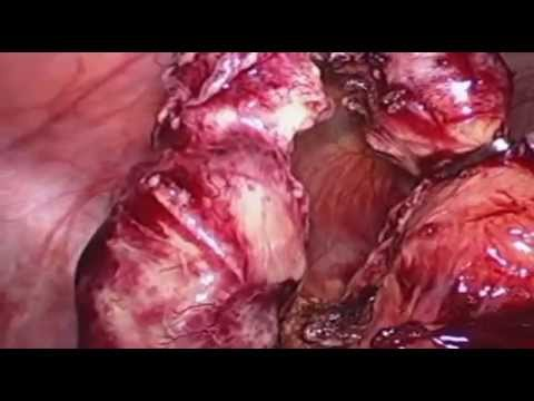 Laparotomia exploradora por video(peritonite purulenta / Laparotomy by video (purulent peritonitis)