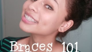 getlinkyoutube.com-Braces 101: Types,Cost,& How to get them CHEAP!