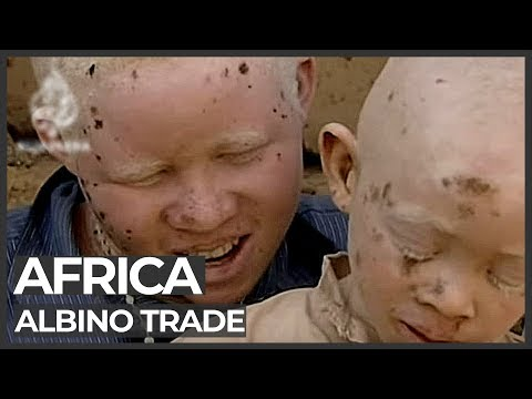 African albinos killed for body organs - 23 Jul 09 ****SAD***