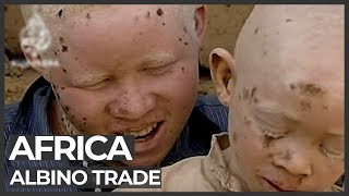 African albinos killed for body organs