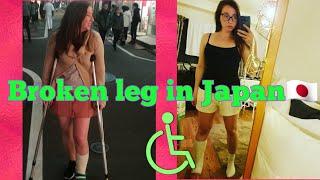 I broke my leg in Japan!
