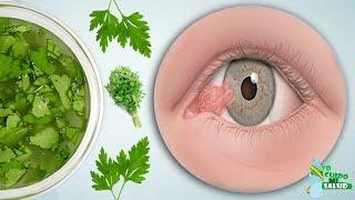 Con Esta Hierba Se Puede Prevenir Hasta 9 Enfermedades De Los Ojos  Incluyendo Las Cataratas!