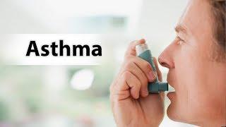 अस्थमा (दमा) सिर्फ 3 दिन में होगा ख़त्म
