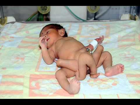 Umar Farooq, Six-Legged Baby, Recovering After Surgery To Remove Extra Limbs