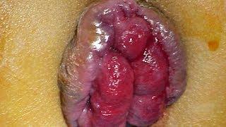 getlinkyoutube.com-Hemorroides| Las Hemorroides y Cómo Curarlas Para Siempre