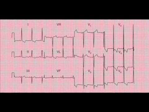 Reading and Interpreting a 12-lead ECG (EKG)