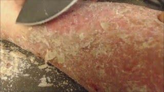 getlinkyoutube.com-Flakey Hweef Wellington - [Psoriasis, flakes, pick, scrape]