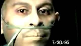 getlinkyoutube.com-el sida en diferentes etapas en un solo hombre hasta su muerte