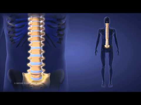 Spinal Injury vs. Spinal Cord Injury