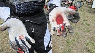 getlinkyoutube.com-Pathetic crash on crf250r trail riding: GoPro Hero3+