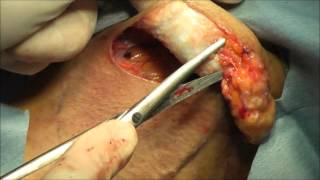 getlinkyoutube.com-わきが (腋臭症) 手術, 剪除法, 皮弁法のすべて2 日本橋形成外科 動画