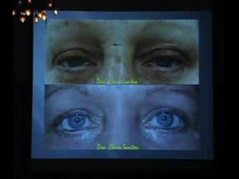 Blefaroplastia Quimica- eyes