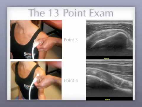 Don Buford MD 13 Point Shoulder Ultrasound Exam