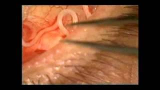 getlinkyoutube.com-Retiran un gusano vivo de 13 centímetros del ojo de un paciente