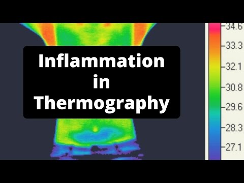 How Inflammation Looks in Thermography - Massage Monday #324
