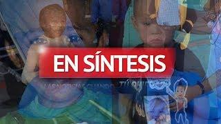 Incendio deja a 2 niños graves; temen lo peor