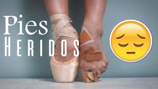 getlinkyoutube.com-Mis pies lastimados por ballet - Ejercicios para pies/ Perfecta de Pies a Cabeza (Dani Zilli)