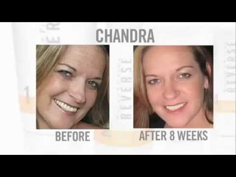 Rodan + Fields Products Before and Afters