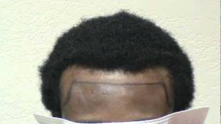 getlinkyoutube.com-Black African Hair Transplant of Receding Hair Line Restoration www.mhtaclinic.com