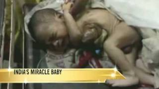 getlinkyoutube.com-2-hour surgery saves 'miracle baby'