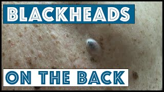 getlinkyoutube.com-All you ever wanted in Blackhead Extractions