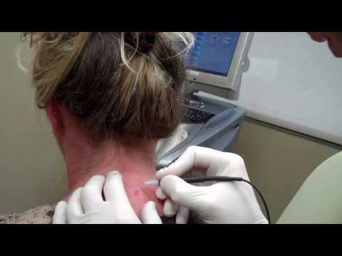 Dr. Seiler treating a Hemangioma Birthmark with the Lamprobe