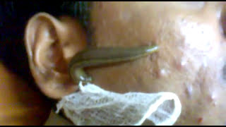 getlinkyoutube.com-acne treatment by leech therapy dr yogesh lodelliwar