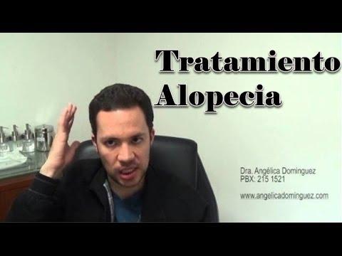 Testimonio Paciente Tratamiento Alopecia o Calvicie en Hombres y Mujeres | Infiltracion Capilar